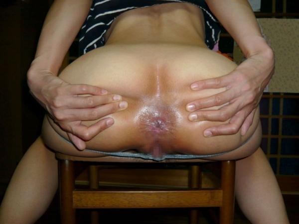 BBAの肛門画像-3