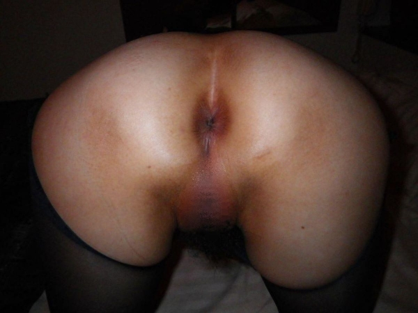 BBAの肛門画像-60