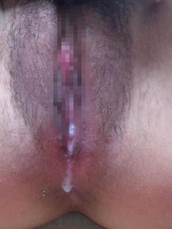 女性器の接写画像-83