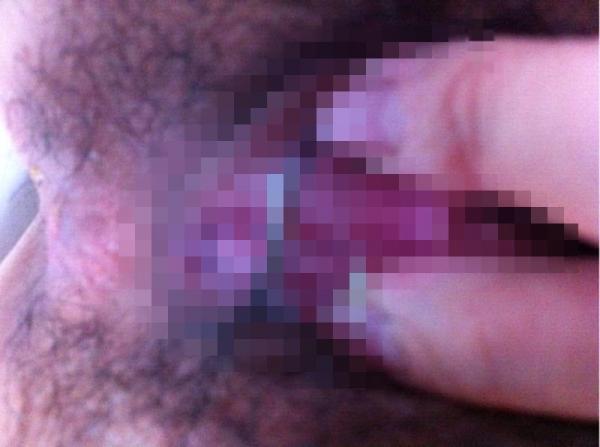 女性器の接写画像-92