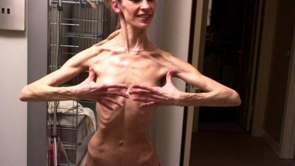 拒食症のヌード画像-5