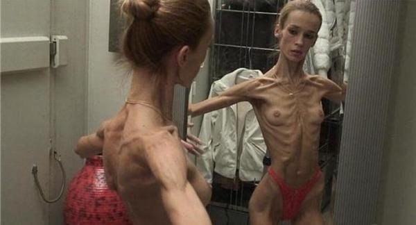 拒食症のヌード画像-8
