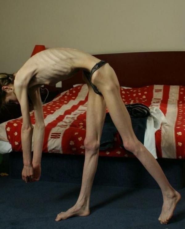 拒食症のヌード画像-10