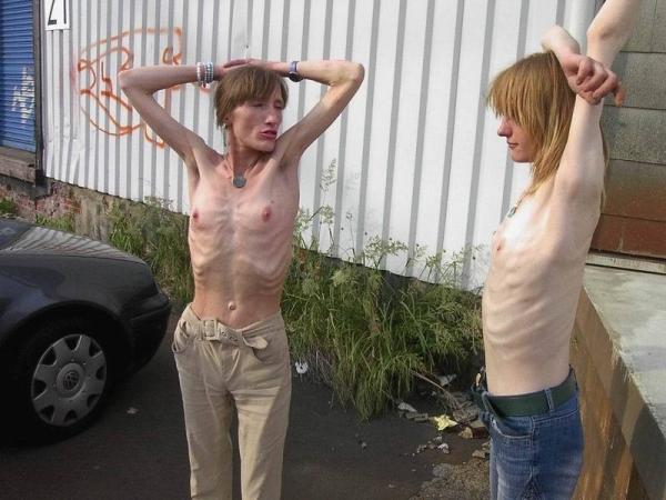 拒食症のヌード画像-11