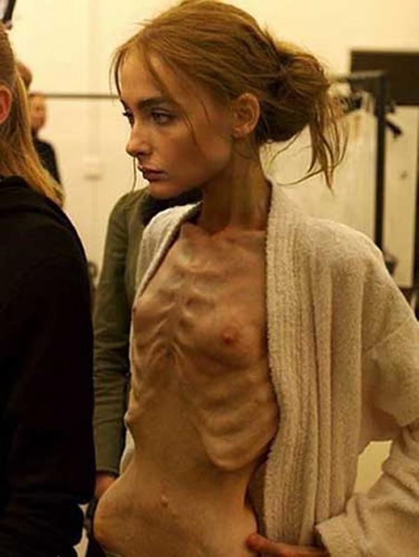 拒食症のヌード画像-19