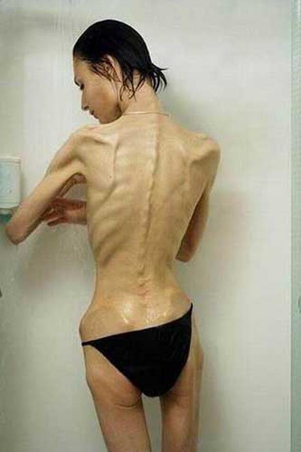 拒食症のヌード画像-20