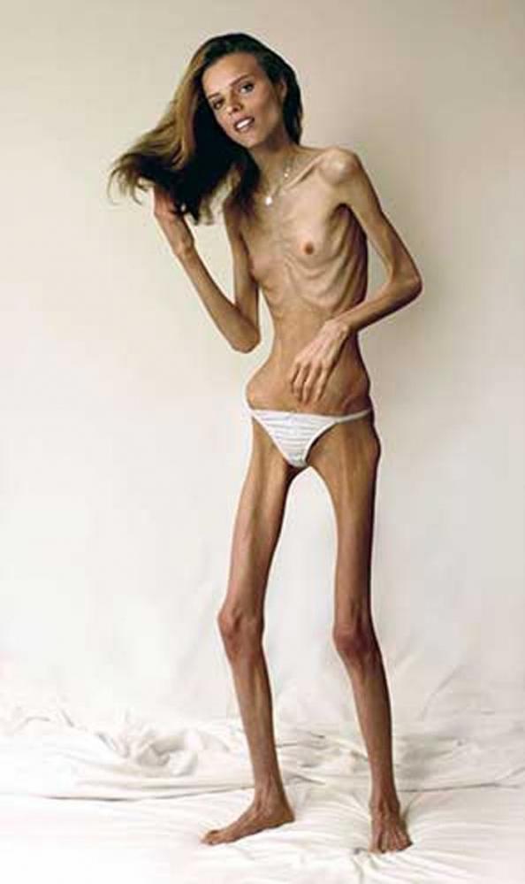拒食症のヌード画像-21