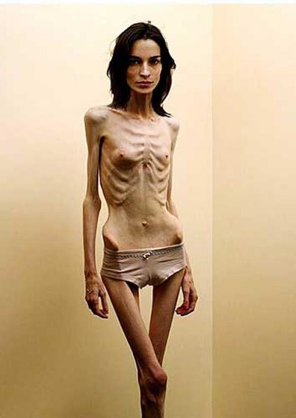 拒食症のヌード画像-23