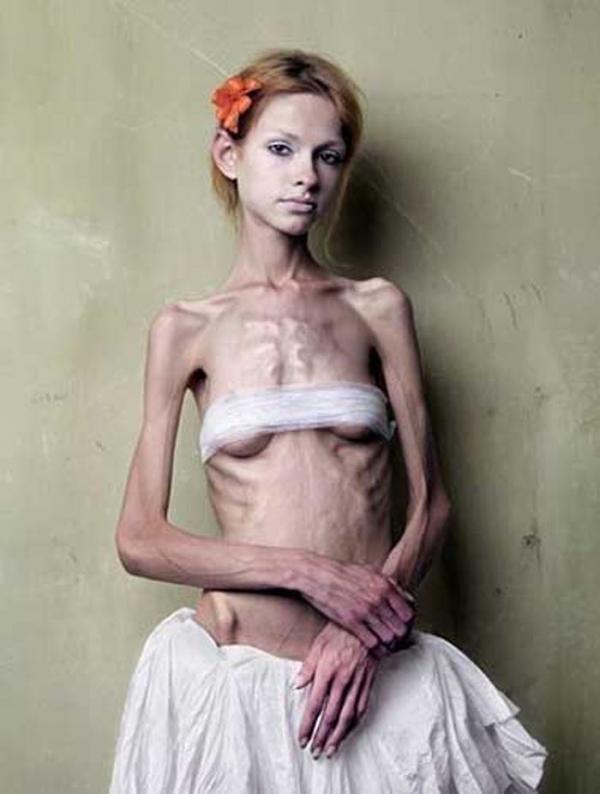 拒食症のヌード画像-24