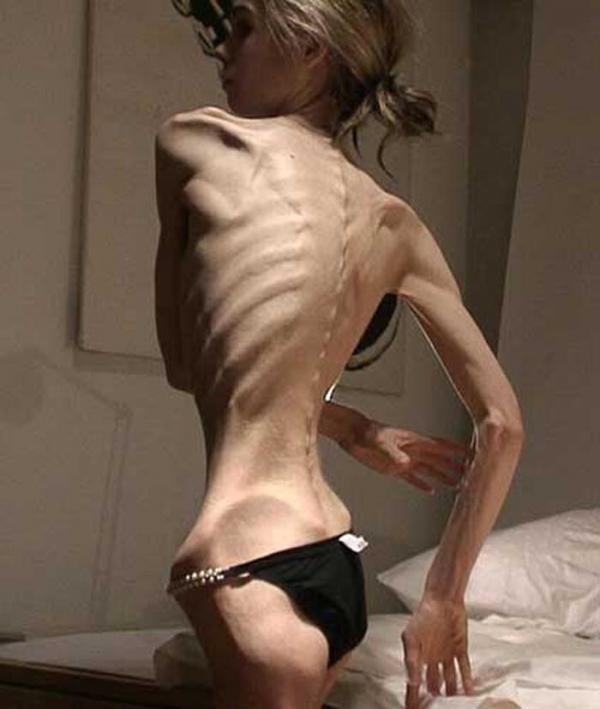 拒食症のヌード画像-25