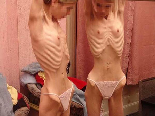 拒食症のヌード画像-26