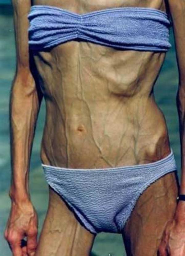 拒食症のヌード画像-31