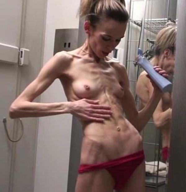 拒食症のヌード画像-32