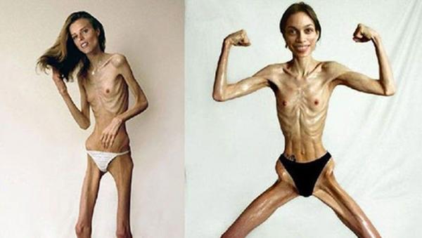 拒食症のヌード画像-47