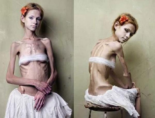 拒食症のヌード画像-48